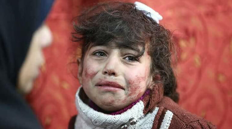 syrian regimes air strikes killend many of childrens